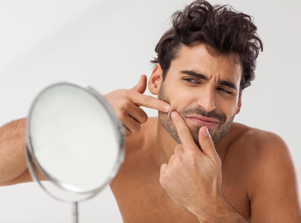 導致男士容易生暗瘡的不良習慣