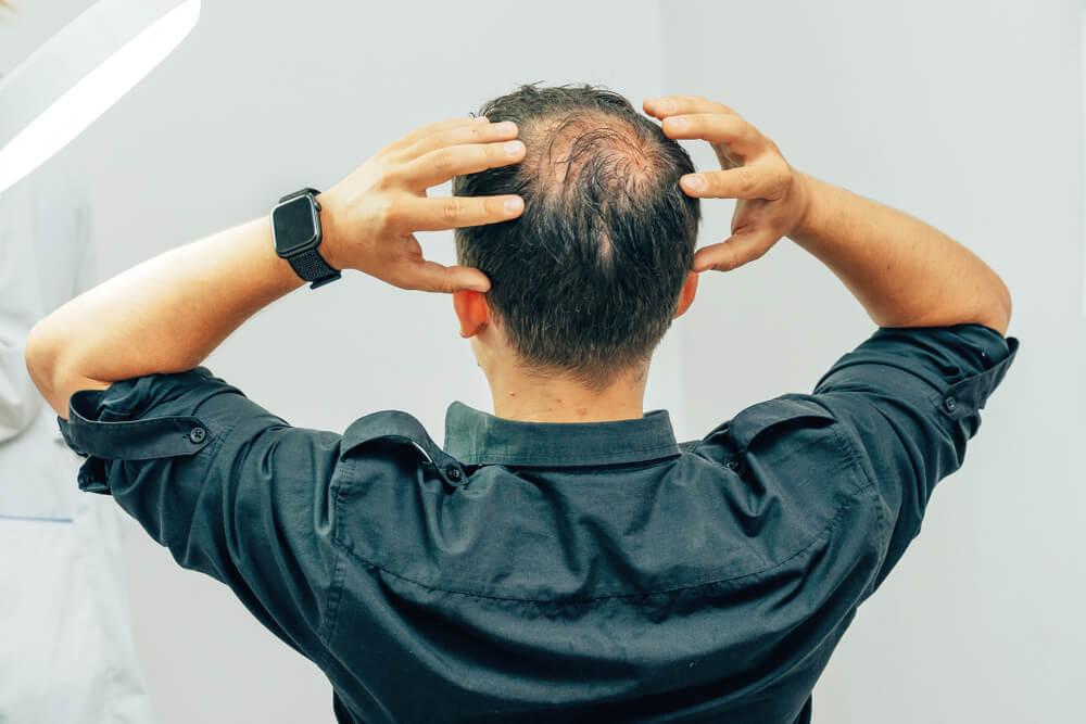 男士脫髮-甚麼是男性型脫髮-脫髮解決方法-2