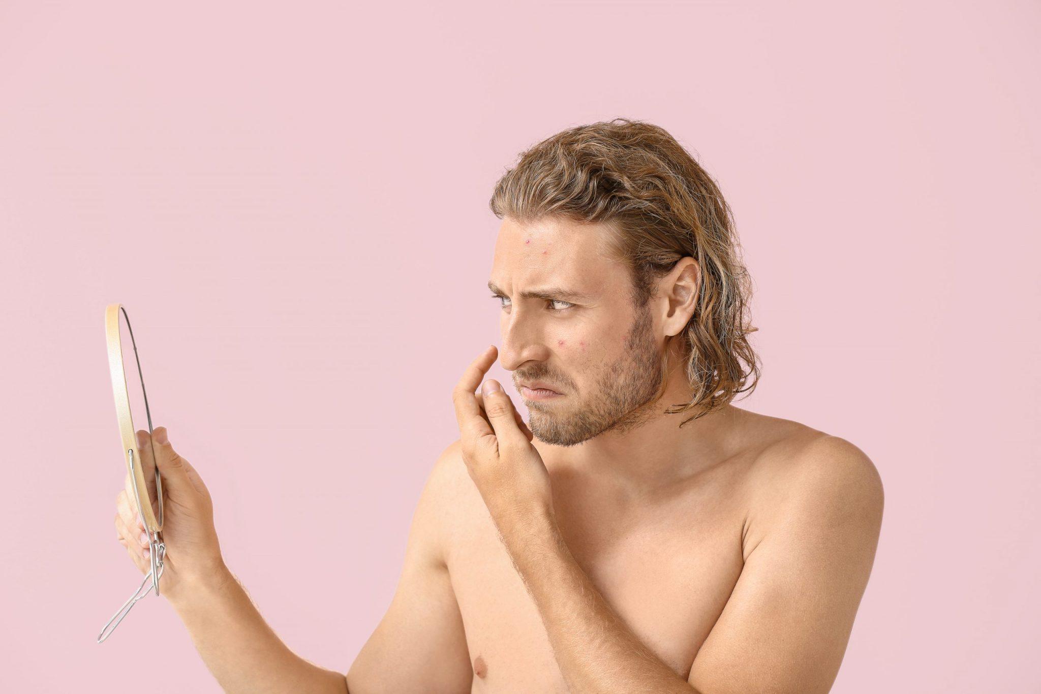暗瘡懶人包-暗瘡5大原因及治療方法 (1)