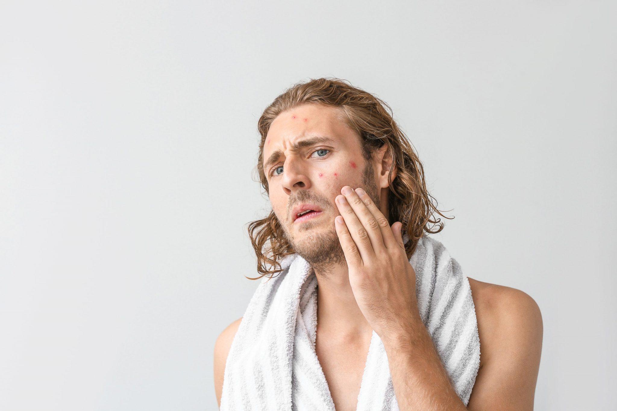 暗瘡懶人包-暗瘡5大原因及治療方法 (2)