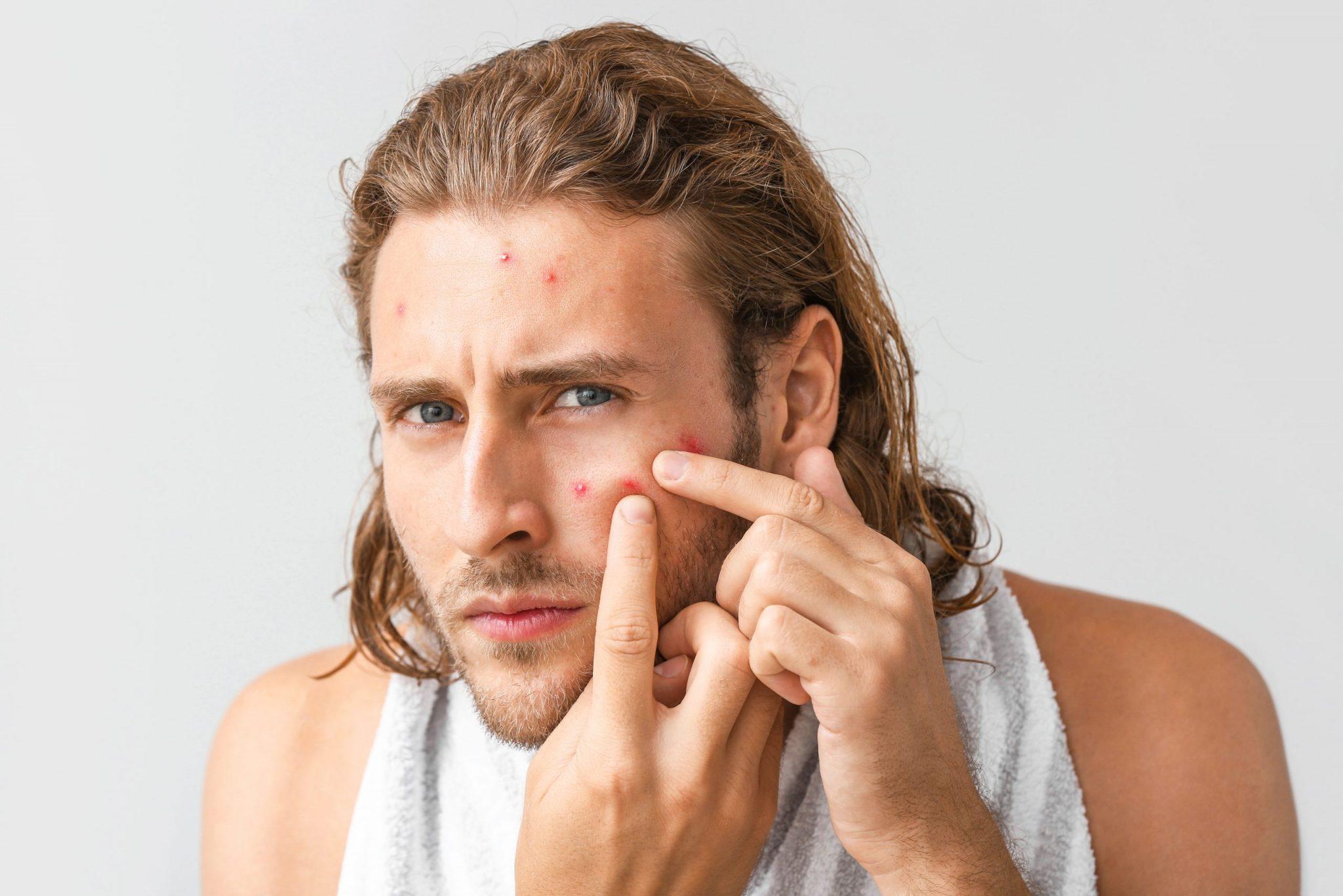 暗瘡懶人包-暗瘡5大原因及治療方法 (5)