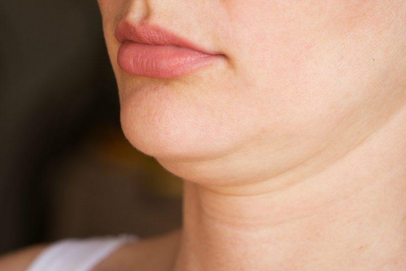 減雙下巴-瘦下巴方法