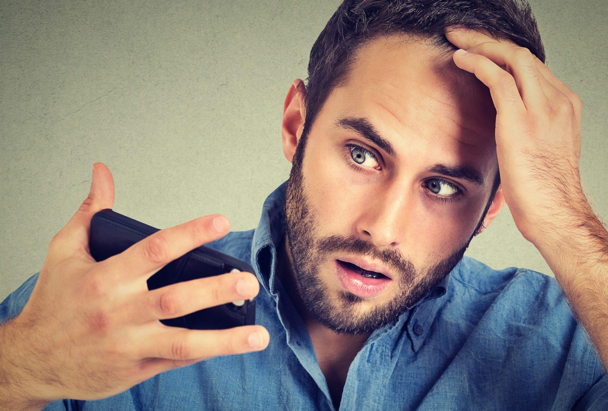 雄性禿-原因-特徵-治療