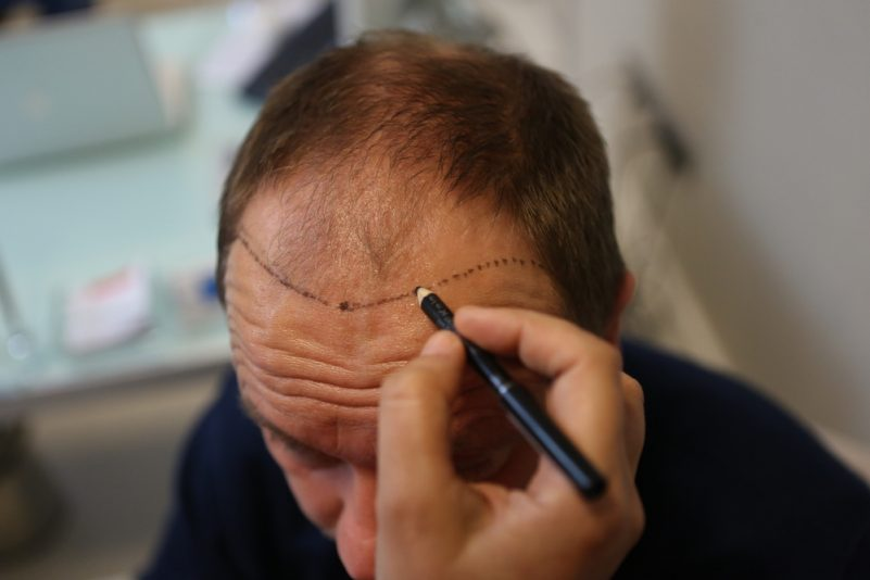 雄性禿治療方式-植髮