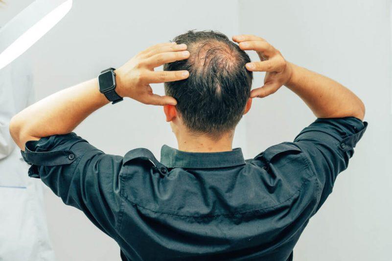 脂溢性脫髮症狀