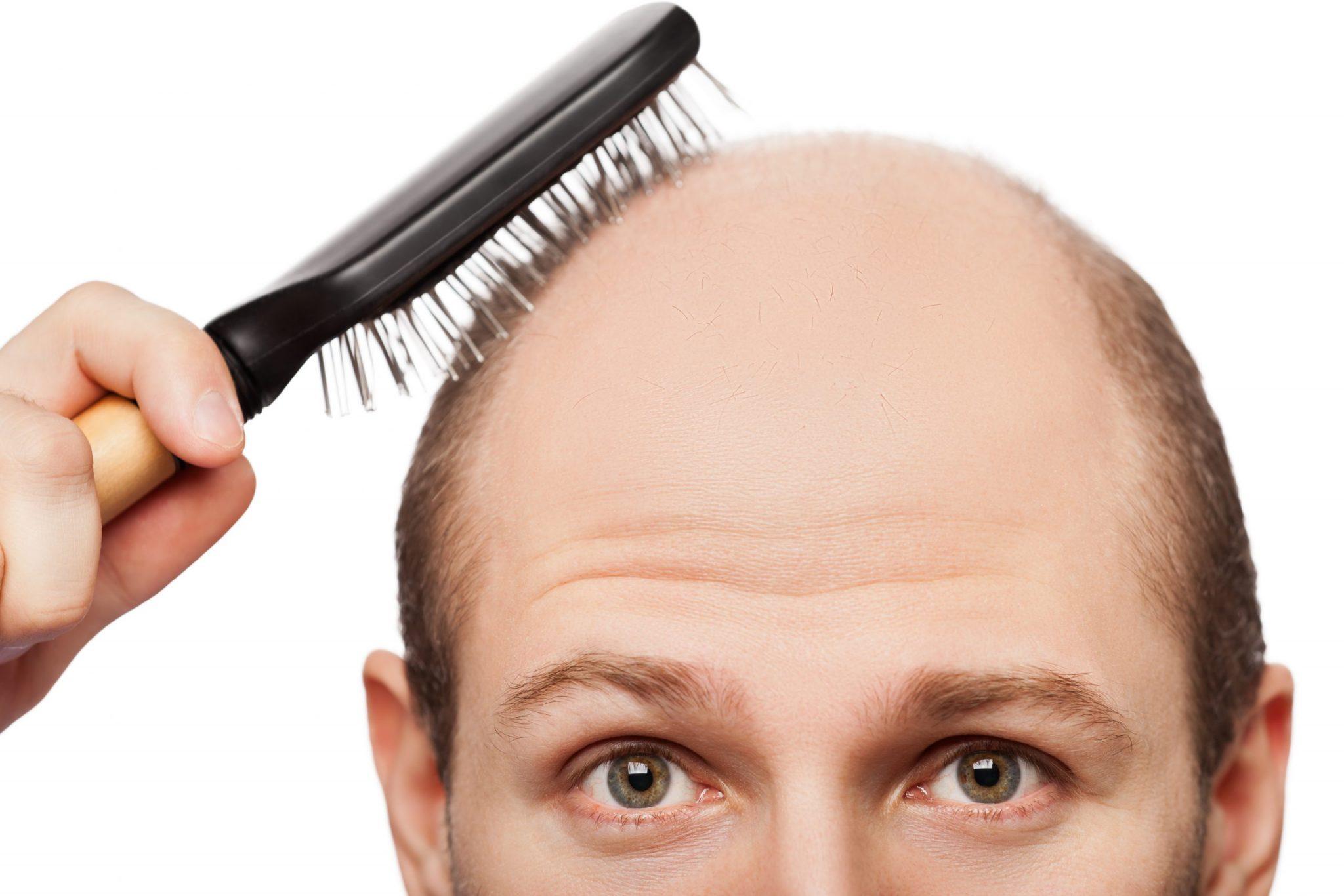 地中海-頭頂脫髮-甩頭髮