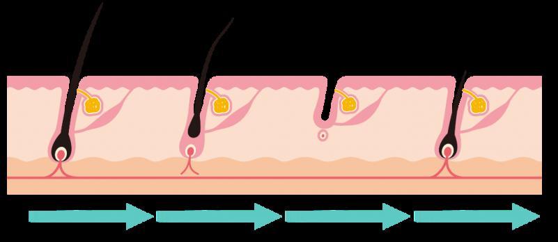 M字額-頭髮生長階段