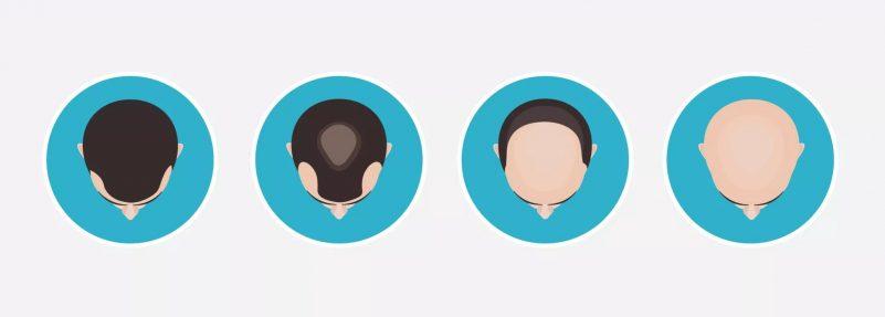 雄性禿先兆及階段-脫髮問題