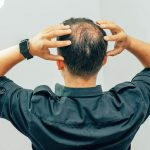 導致禿頭的原因究竟是甚麼