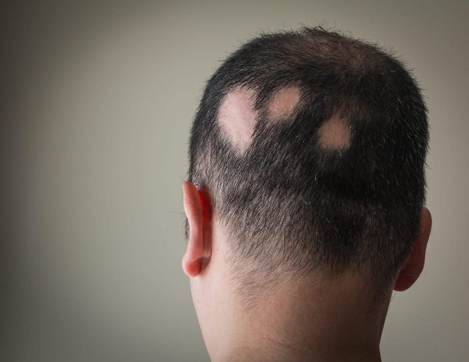 分享斑禿-鬼剃頭的治療方法