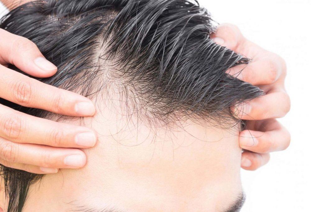 禿頭的其中一個先兆是髮線後移