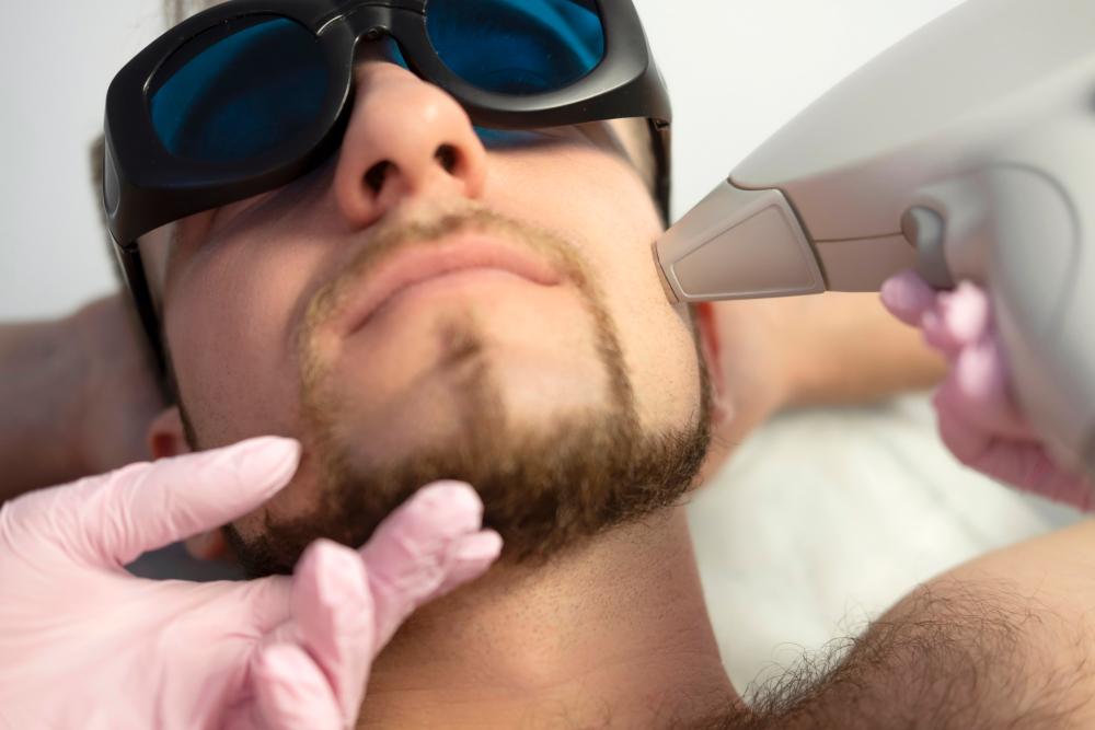 皮秒激光有效打走肝斑