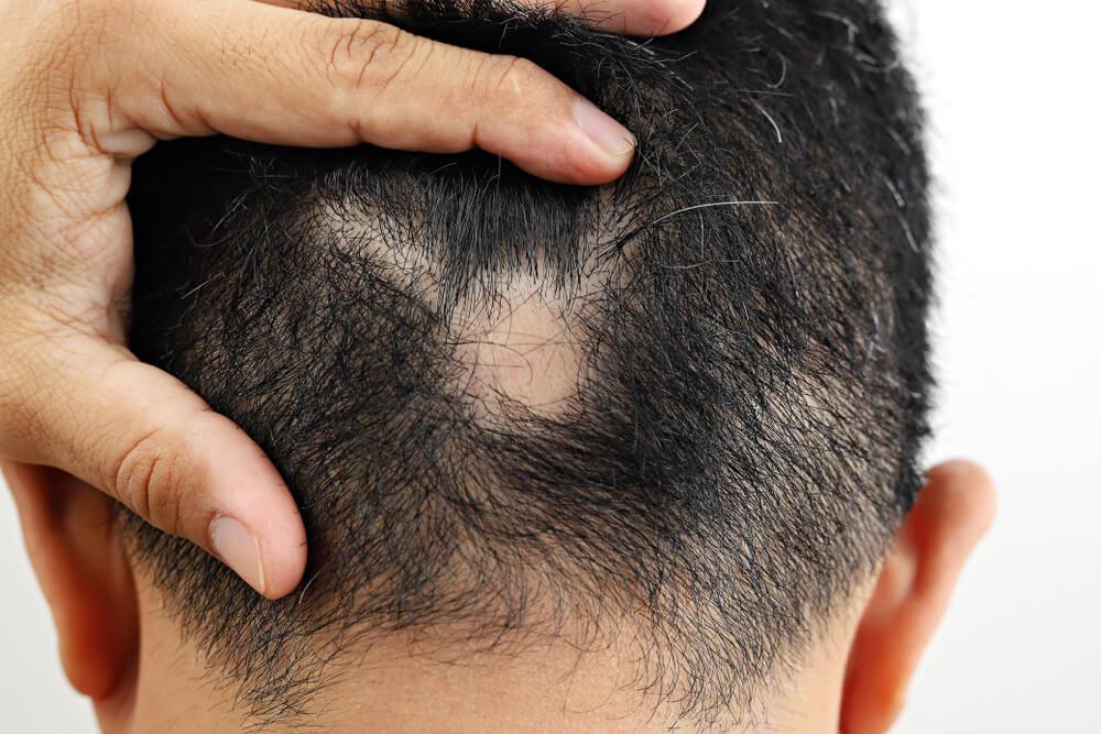 斑禿/鬼剃頭會復發嗎?