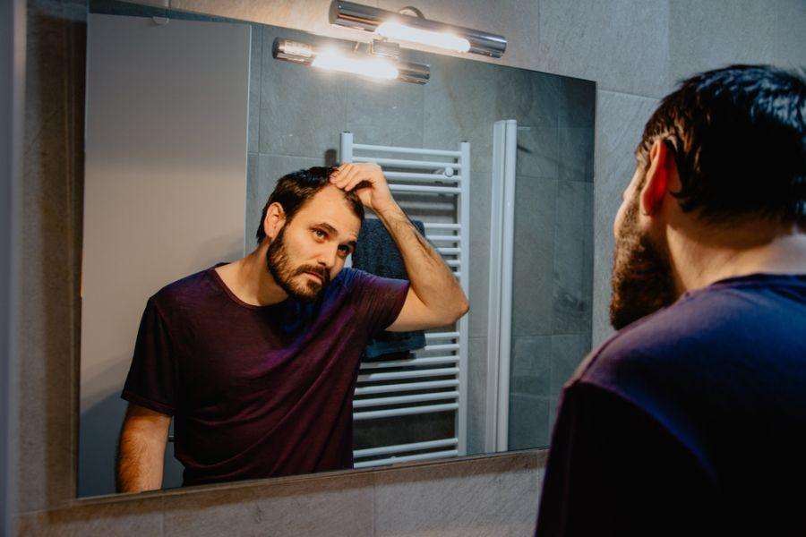 男士脫髮治療