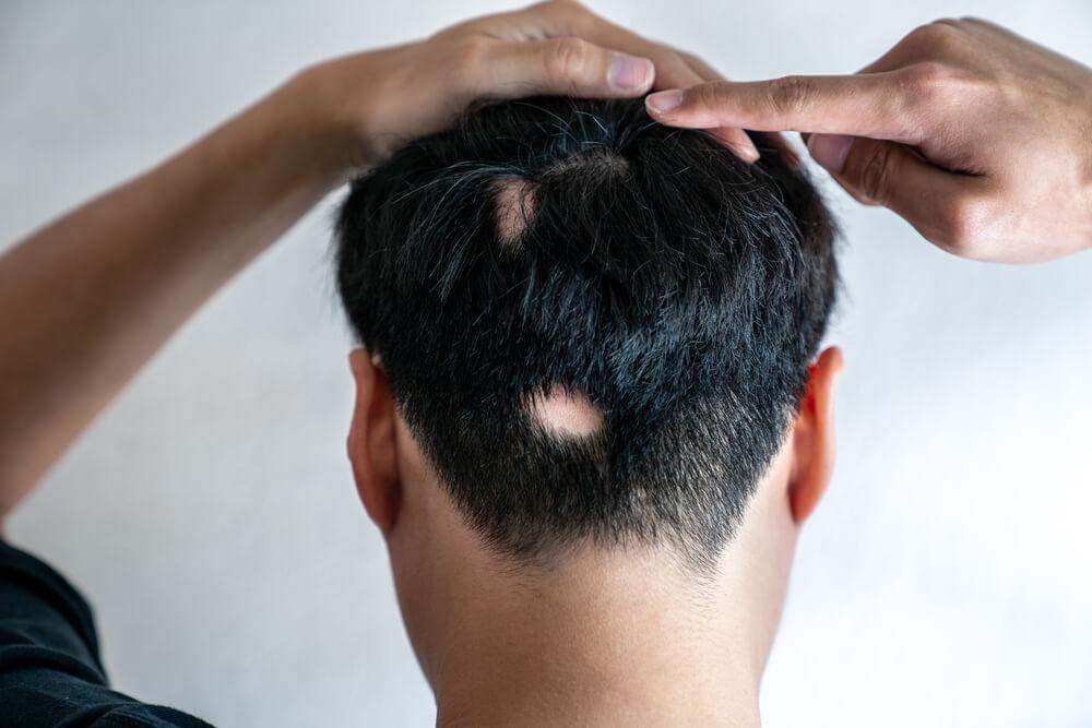 斑禿/鬼剃頭的病理原因