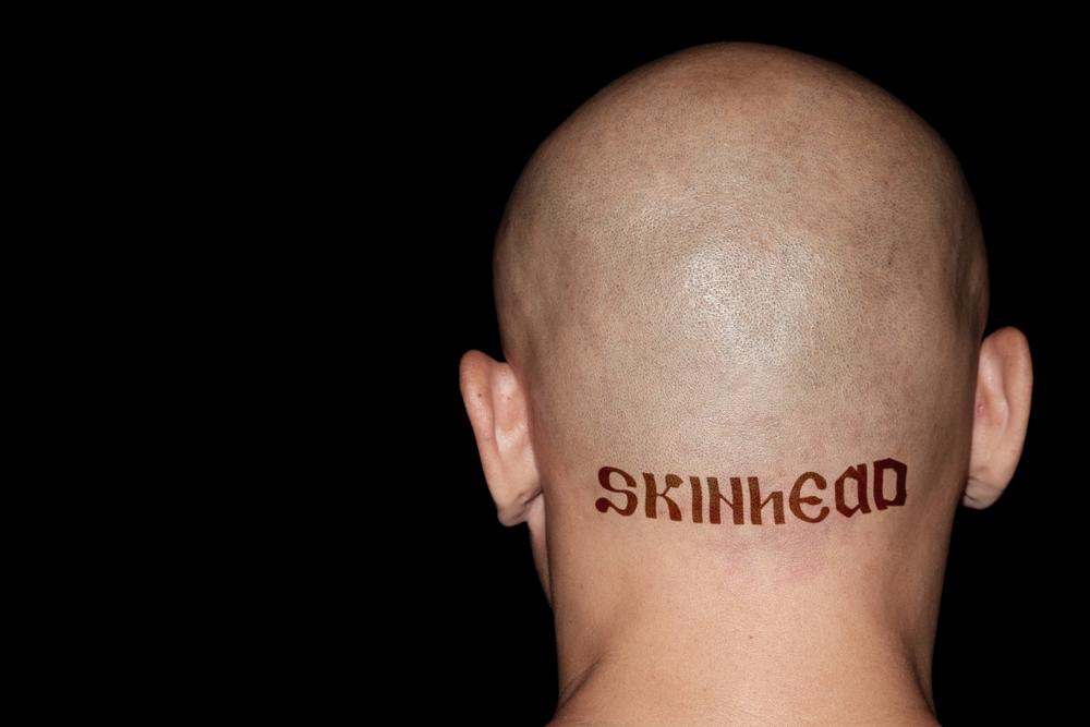 皮秒激光可以洗刺青