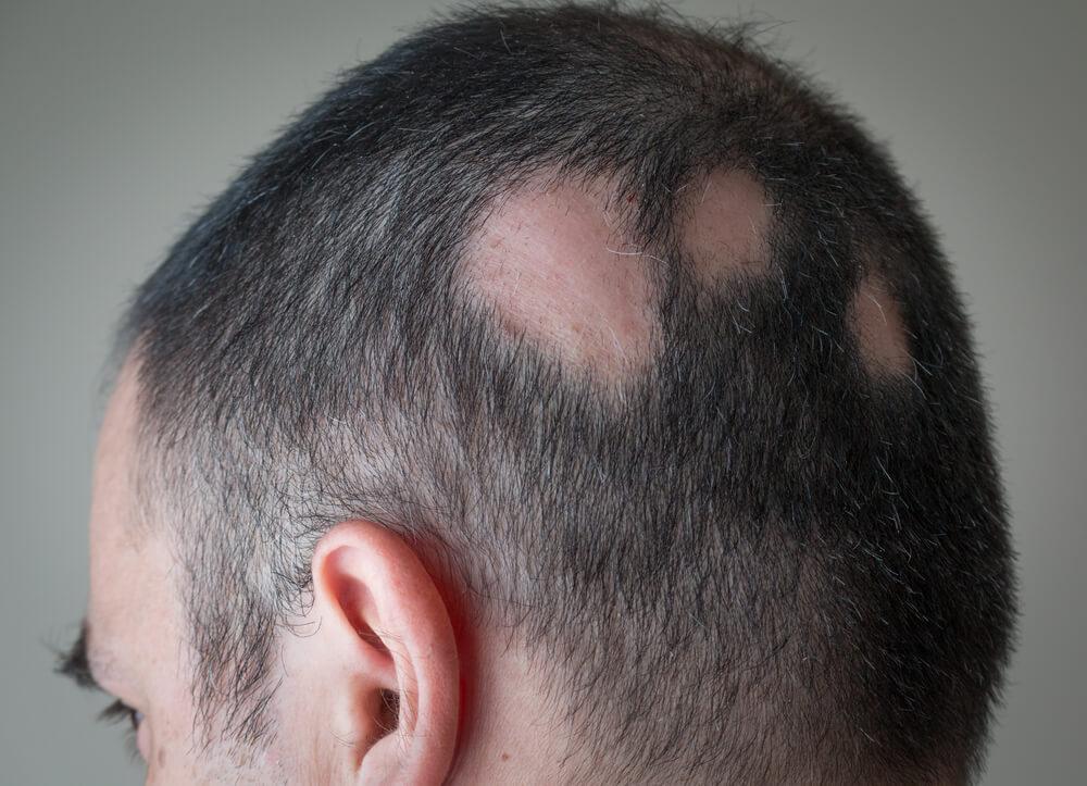 斑禿/鬼剃頭的不同種類