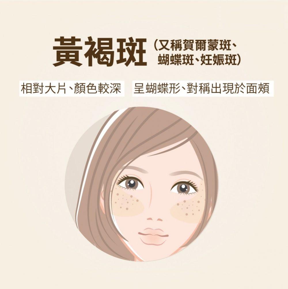 色斑的種類-黃褐斑-賀爾蒙斑-肝斑