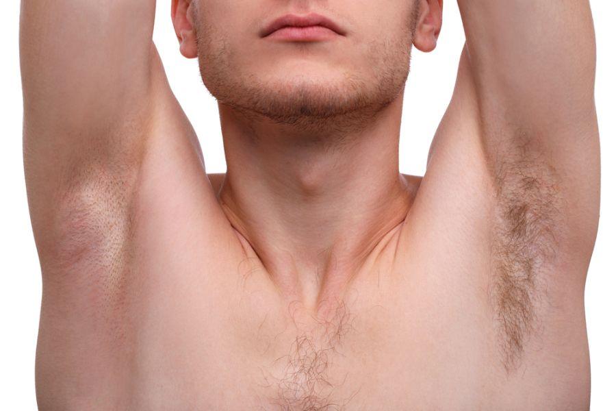 男士激光脫毛療程
