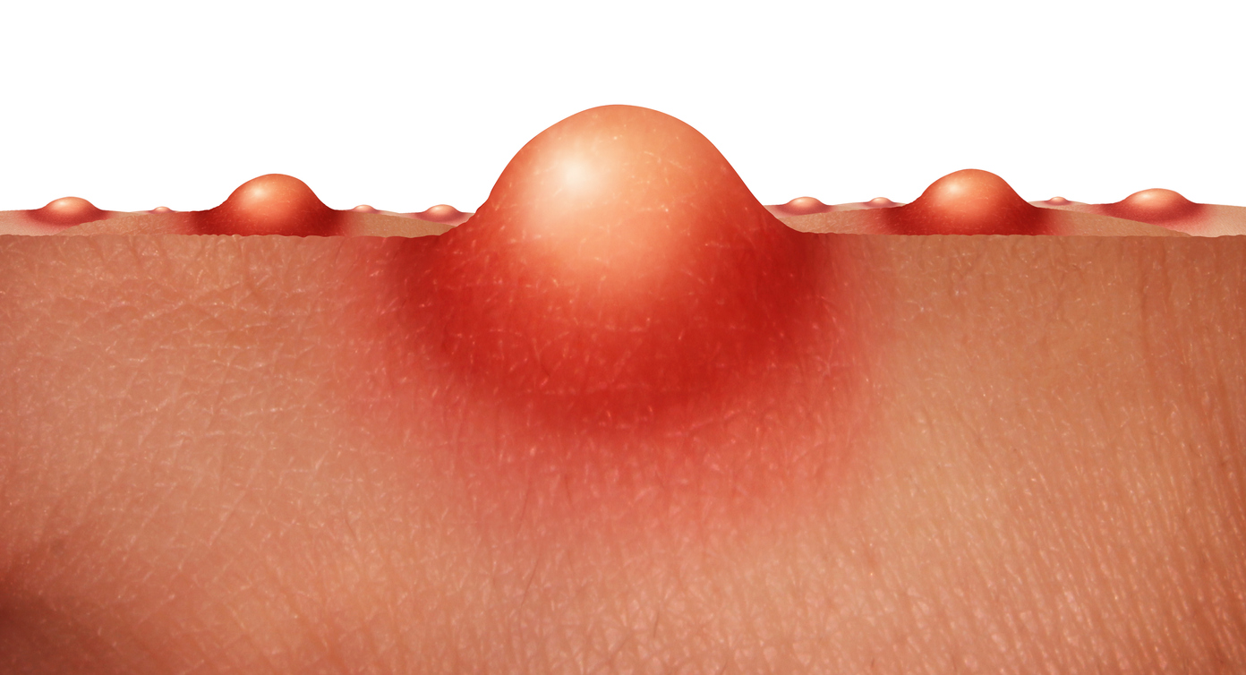 囊腫型暗瘡