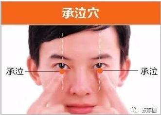 眼腫-承泣穴